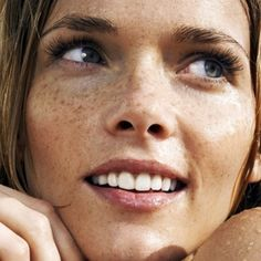 Home Remedies for Hyperpigmentation
