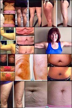 Casos reales con el uso continuo de la Crema Reafirmante y de Contorno Corporal Nerium http://beautyskin1.nerium.com.mx