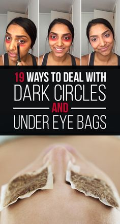 ~ 19 Ways To Deal With Dark Circles And Under-Eye Bags