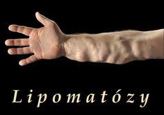 Lipomatózy - Dercumova choroba, Madelungova choroba ad. lipomatózy - příznaky, projevy