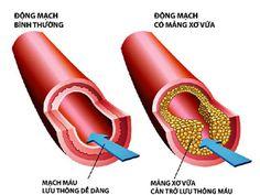 Rối loạn mỡ máu và phương pháp điều trị không dùng thuốc