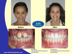 Corinna Orthodontics, Portsmouth, King Charles, Photos, Pictures, Cake Smash Pictures