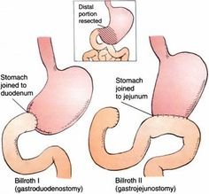 Types of PARTIAL GASTRECTOMIES. Billroth 1 ...