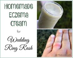 Eczema Remedies I made this homemade eczema cream to heal my wedding ring rash, and itchy red rash that had developed under my wedding ring. The soothing cream works great! Psoriasis Treatment Cream, Toenail Fungus Treatment, Essential Oils For Rash, Ayurveda, Best Cream For Eczema, Rashes Remedies, Eczema Causes, Beast, Skin Care