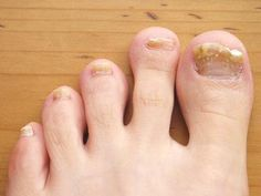 Learning how to get rid of nail fungus and yellow toenails is not that hard. In this article we discuss all the top natural methods to cure the condition. Read on to learn all you will ever need for dealing to this problem once and for all.          Yellow toenails are typically sy