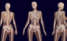 #Scientist Reveal What #Cannabis Does to Your #Bones.. http://www.cannabisconnections.tk/2017/05/scientist-reveal-what-cannabis-does-to.html?m=1&utm_content=buffer7e610&utm_medium=social&utm_source=pinterest.com&utm_campaign=buffer #cbd #cannabinoids #science #century #old #solutions