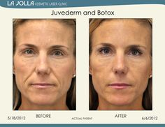 Patient treated with Juvederm and Botox at La Jolla Cosmetic Laser Clinic.