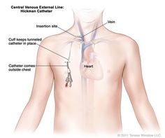 A Hickman line is a central venous catheter most often used for the administration of chemotherapy or other medications, as well as for the withdrawal of blood for analysis. Some types are used mainly for the purpose of apheresis or dialysis.