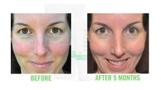 Rodan + Fields Regimen Results - Before and After Photos