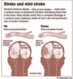 There are different kinds of strokes. Knowing what kind you have can help you find a treatment. (Keep in mind that CureLauncher can also help you find a treatment)