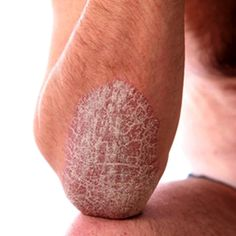 Natural Therapy For Plaque Psoriasis #psoriasis