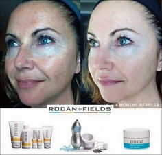 One of my favorite before and afters. Reverse is an amazing regimen! For more info on Rodan and Fields products go to: msiragusa.myrandf.com