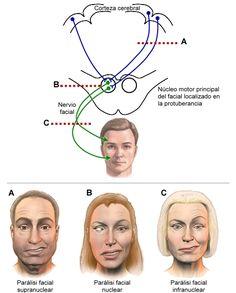paralisis facial central - Buscar con Google