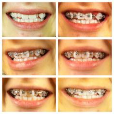 The Braces Survival Guide: New Braces Blog! Great tips for less pain