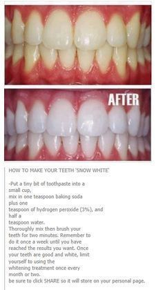 Natural Teeth Whitening Remedies How To Whiten Yellow Teeth and Remove Plague and Tartar Buildup Teeth Whitening Remedies, Natural Teeth Whitening, Homemade Teeth Whitening, White Teeth Remedies, Best Whitening Toothpaste, Natural Remedies, Hair Remedies, Skin Whitening, Natural Beauty Tips