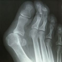 Millions of people around the world suffer from bunions. They're a progressive deformity that will not improve without treatment or surgery. Unknown to most, they're are options that can work to he...