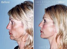 You can expect naturally beautiful results from face lift surgery with Dr Chris Moss – an internationally recognised expert in facial rejuvenation surgery . Facelift Before And After, Facelift Without Surgery, Cheek Lift, Brow Lift, Body Lift Surgery, Chris Moss, Mini Face Lift, Facial Procedure, Cosmetic Fillers