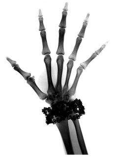 X-Ray Hand