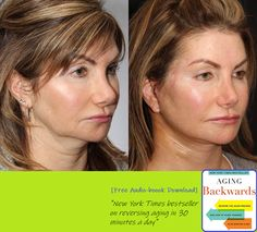 This patient underwent a Facelift 12 days ago at our Thornhill Surgical Centre.  She's 50 years old and wanted to address sagging skin in her neck and jowls.  She had previously used filler to achieve temporary results but wanted longer lasting results that would look natural.  In just 12 days, her bruising has resolved and you can already see changes in the shape of her jawline.  Swipe left more views . TREATMENT: Facelift Surgery PURPOSE: To remove excess skin, tighten underlying muscle and r Miranda Esmonde White, Facelift Surgery, Earth Book, Aging Backwards, Reverse Aging, Sagging Skin, Aging Process, Jawline, 12 Days
