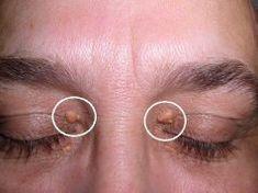 Sárgás lerakódások a szem körül: okok és természetes gyógymódok Stud Earrings, Eyes, Health, Awesome, Alcohol, Health Care, Stud Earring, Cat Eyes, Earring Studs