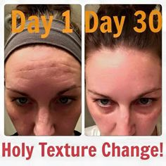 Take the Rodan+Fields 60 day challenge! You WONT regret it! Look at what just 30 days with Redefine did in this before and after! #rflove  https://ashleyreub.myrandf.com/Home