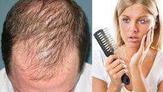 Elimina la calvicie con tan solo cinco gotas de este aceite natural Biotin, Tips Belleza, Natural Skin Care, Health Tips, Cool Hairstyles, Beauty Hacks, Remedies, Tan Solo, China