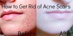 Join. And how to get rid of acne burns