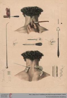 ☤ MD ☞☆☆☆ Jean-Baptiste Marc Bourgery (https://pinterest.com/pin/287386019948321810) & Nicolas Henri Jacob. [Traité complet de l'anatomie de l'homme comprenant la médecine opératoire (https://pinterest.com/pin/287386019941966857/ )]. See: https://pinterest.com/pin/287386019941958066