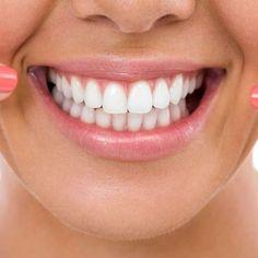 7 hábitos que pueden acabar con el esmalte de tus dientes