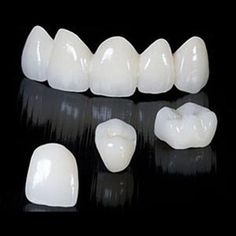 Dental Arts - Christian Chirla, DMD is an affordable skilled Dentist in Akron and Wadsworth, OH. Call today or request an appointment on our website. Tooth Bridge, Dental World, Dental Life, Porcelain Crowns, Tooth Crown, Dental Aesthetics, Dental Posters, Veneers Teeth, Dental Technician