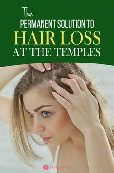 [ Hair Care : 8 Simple Ways To Treat Hair Loss At The Temples: Temple hair loss in females is common and dealing with it can be quite hard, but Normal Hair Loss, What Causes Hair Loss, Hair Loss Cure, Anti Hair Loss, Hair Loss Remedies, Argan Oil For Hair Loss, Best Hair Loss Shampoo, Biotin For Hair Loss, Biotin Hair