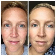Because life is too short not to GLOW!  Get your glow and erase brown spots and prevent future damage with Reverse by Rodan + Fields.  PM me to get glowing!