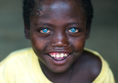 Smiling ethiopian boy called abushe with blue eyes suffering from waardenburg syndrome omo valley jinka Ethiopia on March 18 2016 in Jinka Ethiopia