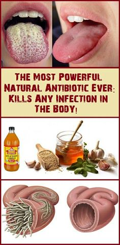 The Most Powerful Natural Antibiotic Ever: Kills Any Infection in The Body!