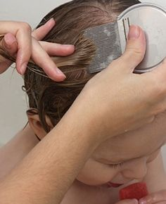 Fight Itchy Scalp With Home Remedies:: Itchy scalp may be irritating for anyone, especially during hot summers.Now let us move on to the simple home remedies that work in eliminating scalp itchiness.