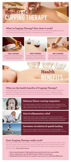 Shiatsu Massage The benefits of cupping therapy- and does it actually work - Learn the benefits and risks of cupping therapy, a controversial method used to stimulate muscle healing and popularized by Olympic athletes. Benefits Of Cupping, Acupuncture Benefits, Massage Benefits, Hijama Benefits, Chiropractic Benefits, Massage Tips, Chiropractic Care, What Is Cupping Therapy, Massage Therapy