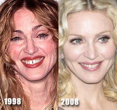 Madonna plastic surgery before and after plus the gap between her teeth is closed