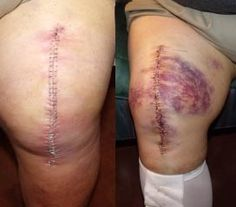 """he picture on left was my Left knee about 10 days post surgery. Right picture is Right knee 5 days post surgery. Left knee never exhibited much bruising and was """"weep free"""". Right knee incision has always been damp w/ obvious bruises. Same surgical team. Work done 6 weeks apart. Camera zoom was not equal, viewer should imagine knees to be same size :th_heehee:"""