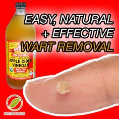 easy, natural + effective wart removal
