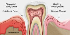 Gingivitis, usually known as gum disease, is a dental issue characterized by symptoms like constant bad breath, red or swollen gums and very sensitive, sore [. Gum Health, Dental Health, Oral Health, Dental Care, Health Tips, Health Care, Teeth Health, Public Health, Gum Inflammation