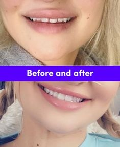 Smile Direct Club Retainer Review Youtube Um In 2019