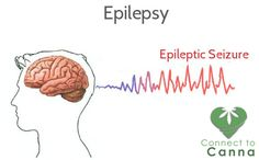 New evidence suggests that a chemical derived from marijuana may be an effective treatment for patients with drug-resistant forms of epilepsy. We have Marijuana treatment for your Epilepsy disease. Must visit here for free sign up http://www.connect2canna.com/contact/ #MarijuanaTreatment #Medicines  #ADHD #MarijuanaTreatment #Medicines #marijuana #cannabis #Diseases #Hospital #Medicine #treatement #cannabinoids #THC #CBD #herb #cannabiscommunity #cannabisculture #socialcannabis…