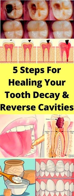http://admirablebuilding.net/5-steps-healing-tooth-decay-reverse-cavities/Healthy gums and teeth make it easy for you to eat as well as enjoy the food. Multiple problems can have a negative impact on your oral health. However, taking good care of your gums and teeth will keep them strong as you age. Source The best way to keep good oral health is... Read more »