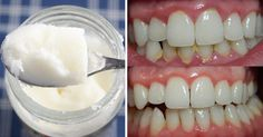oil pulling bad breath remedy Coconut Oil For Teeth, Coconut Oil Pulling, Pasta Dental Casera, Homemade Colon Cleanse, Halitosis, Bad Breath Remedy, Homemade Toothpaste, Coconut Benefits, Dental Care