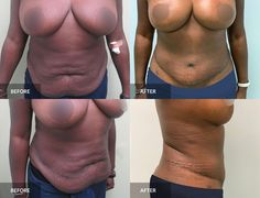 Tummy Tuck: before & after, 3 months post-op  #tummytuck #abdominoplasty #plasticsurgery Tummy Tuck Before After, Tummy Tucks, Abdominal Muscles, Plastic Surgery, 3 Months, How To Remove, Swimwear, Bathing Suits