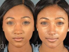 Beverly Hills Rhinoplasty Specialist Dr. Donald Yoo performed a primary rhinoplasty with rib cartilage, diced cartilage fascia (DCF) and alar base reduction on an African American female patient. This before and after picture was taken at 6 months post surgery. #rhinoplasty #nosejob #beverlyhills