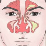 According to conventional medicine, sinusitis—and its painful symptoms of post-nasal drip, inflammation, and sinus headache—can be caused by viruses, bacteria, fungi, or an allergic reaction to dust, pollens, air pollution, ...