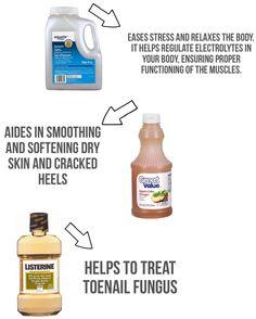 No Scrub DIY FOOT SOAK using Epsom salt, vinegar and mouthwash.
