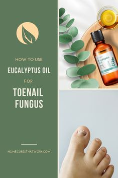 You can treat fungal infections of the toenail with medication, but ... essential oils may have an anti-fungal effect when applied to fungus. Learn how to treat toenail fungus with essential oils naturally and super fast! #essentialoil #EO #fungus #toenailfungus #toenailinfection #antifungal #homecuresthatwork  #eucalyptusoil