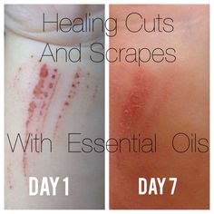 Essential Oils for Cuts